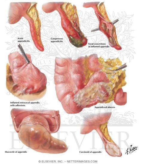 diseases of digestive system. Diseases of the Appendix: