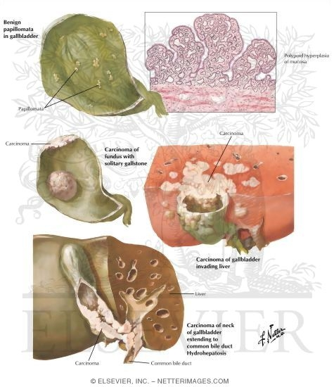 Tumors of Gallbladder