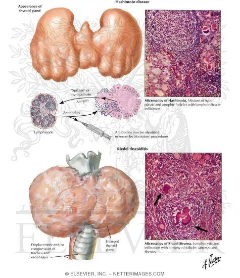 struma; riedel's struma, Human Body