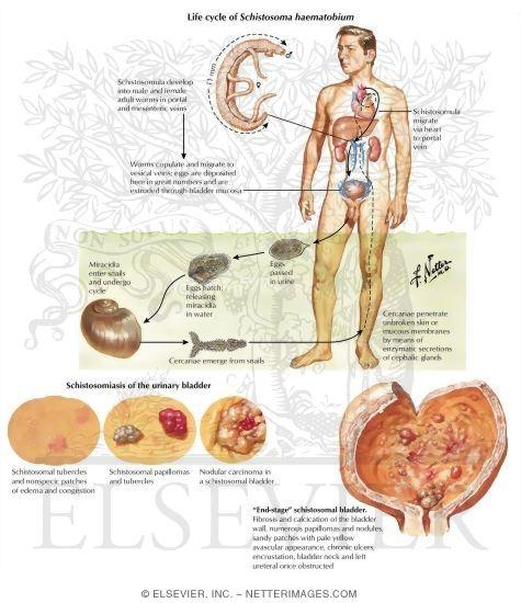 schistosomiasis bladder