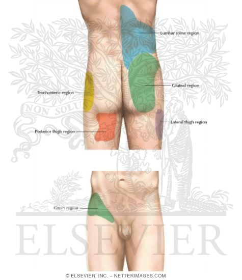 Illustration of Lumbar Zygapophyseal Joint Pain Referral Patterns from the Netter Collection