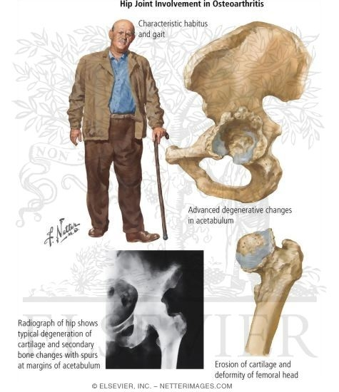 Hip Joint Involvement in Osteoarthritis