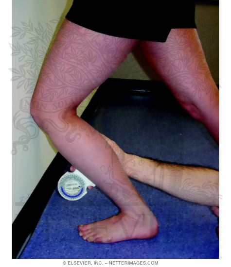 Goniometric Measurements: Weight-Bearing Lunge Measurements of Ankle Dorsiflexion