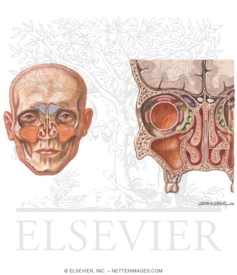 Overview And Topographic Anatomy Of The Paranasal Sinuses