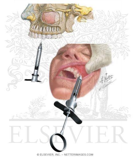 Maxillary Injections: Posterior Superior Alveolar Nerve Block