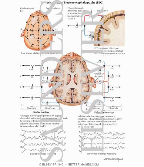 of Electroencephalography (EEG)