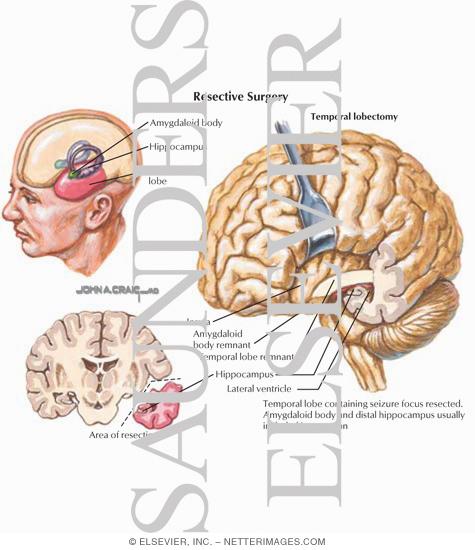 Brain Surgery Epilepsy