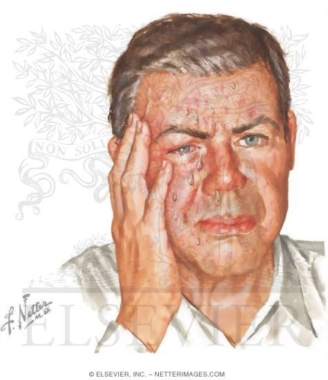 how to avoid cluster headaches