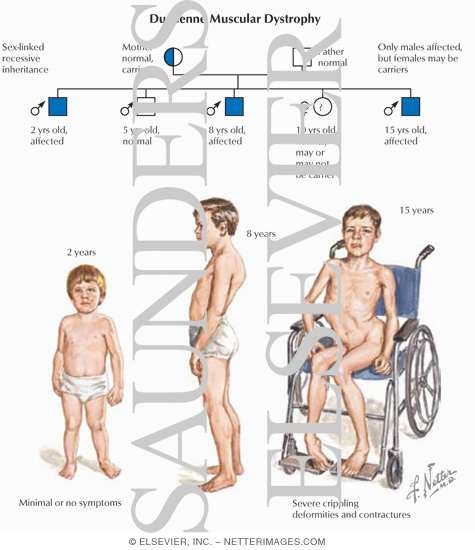 a study on muscular dystrophy