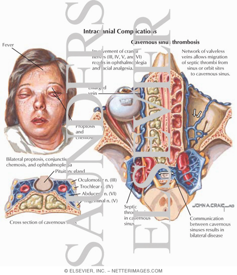 can a tortuous aorta cause thrombophlebitis