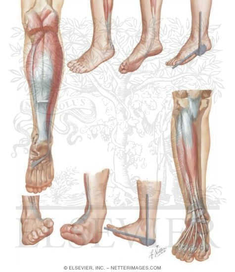 Illustration of Plantar Flexors and Dorsiflexors of Foot from the Netter Collection