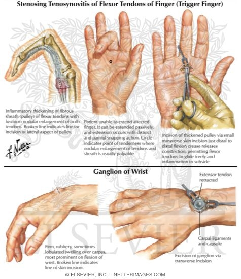 Stenosing Tenosynovitis of Flexor Tendons of Fingers (Trigger Finger) Ganglion of Wrist