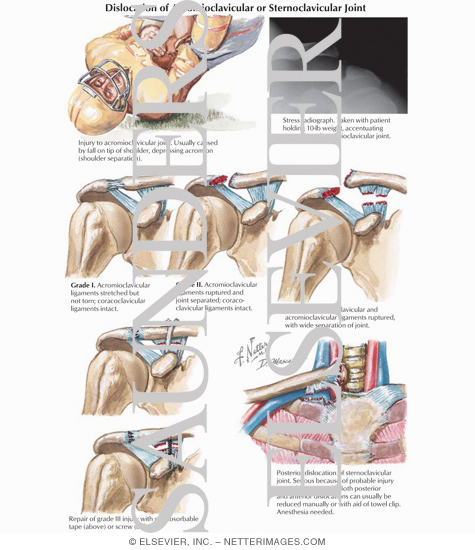 Dislocation of Acromioclavicular or Sternoclavicular Joint