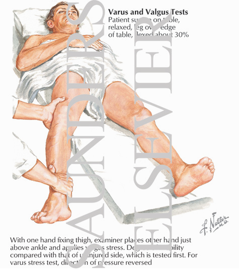 Illustration of Abduction Stress (Forced Valgus) Test and Adduction Stress (Forced Varus) Test from the Netter Collection