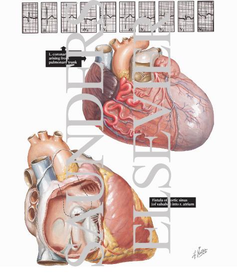 Anomalous Left Coronary Artery and Aneurysm of the Sinus of Valsalva