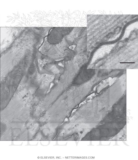 Freeze-Fracture Electron Micrograph Replica of a Gap Junction