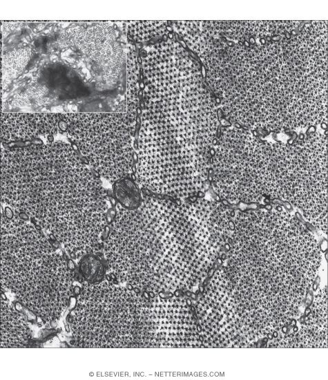 Electron Micrograph of Part of a Skeletal Muscle Fiber Showing Myofibrils In Transverse Section