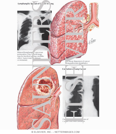 Lymphangitic Spread of Cancer in Lung