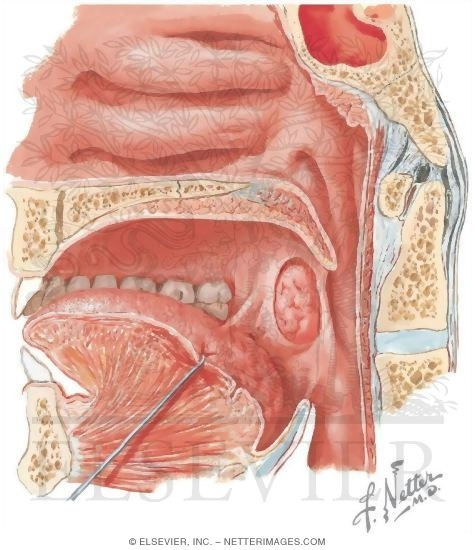 The Passage From Oral Cavity Into Pharynx (fauces) Showing Tonsils ...