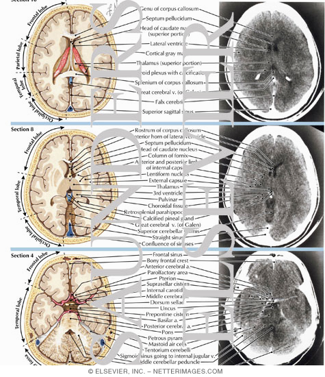 ct brain anatomy