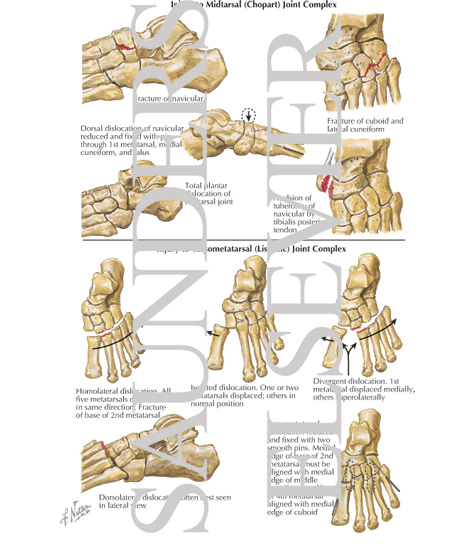 injury to midtarsal chopart joint complex injury to