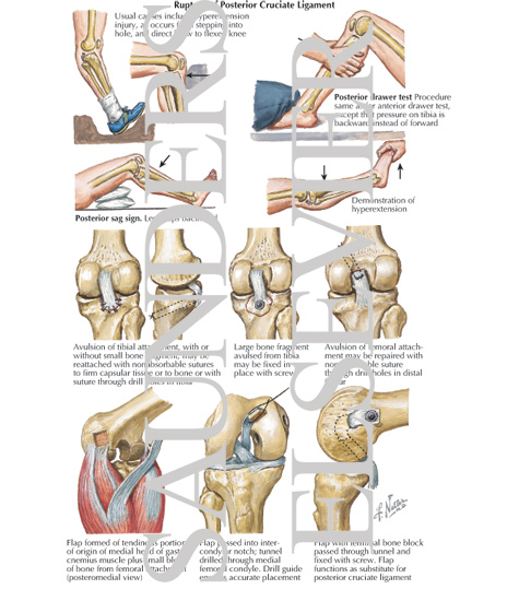 Rupture of Posterior Cruciate Ligament