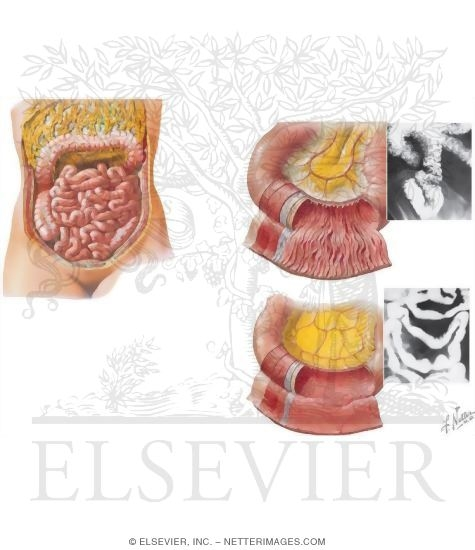 Topography and Relations of Transverse Colon and Greater Omentum ...