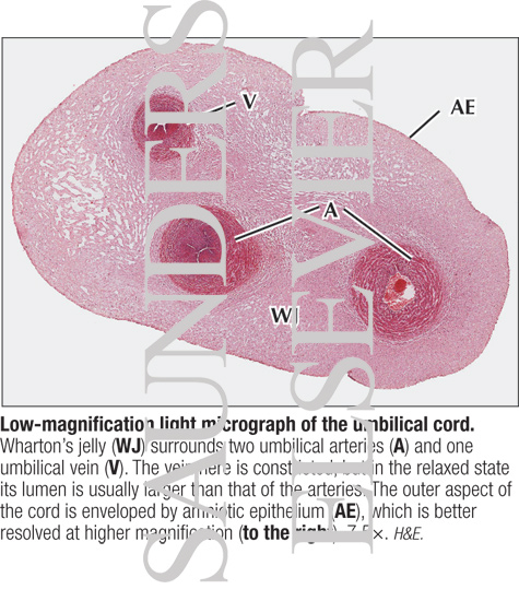 Umbilical Cord Histology Low-magnification Ligh...