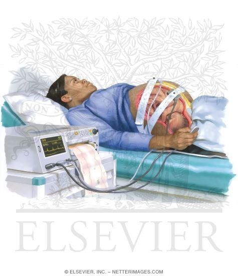 Stress Test Uses: Nonstress Testing In Pregnancy