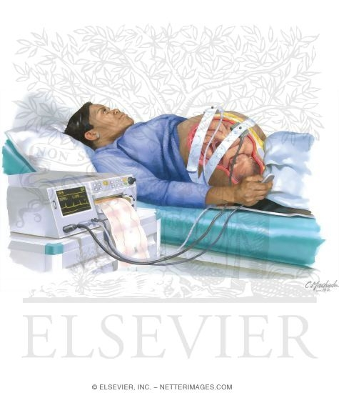 Stress Test Code: Nonstress Testing In Pregnancy
