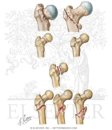 Illustration of Proximal Femur from the Netter Collection