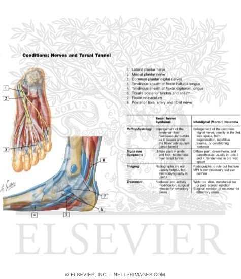 Nerves And Tarsal Tunnel