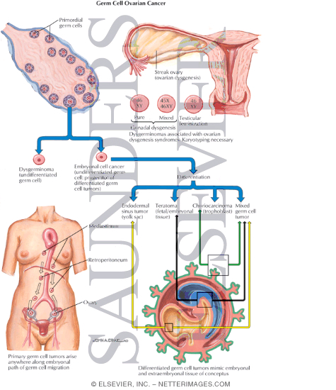 the intracrinology of breast cancer pdf