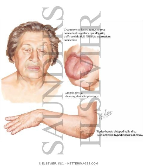 Adult Myxedema: Clinical Manifestations and Etiology
