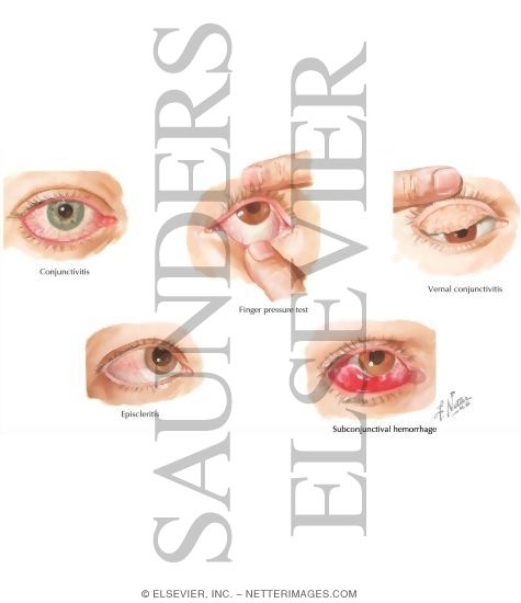 how to stop conjunctivitis pain