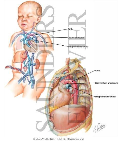 Ductus Ateriosus And Ligamentum Arteriosum