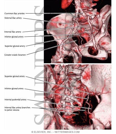 Common, Internal, and External Iliac Arteries