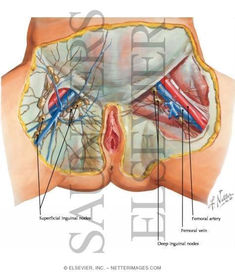inguinal lymph nodes enlarged pelvic male