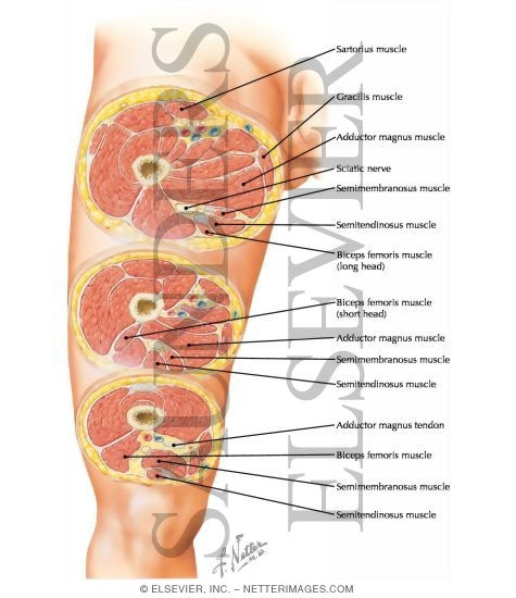 Cross-Sectional Anatomy of Thigh Thigh: Serial Cross Sections