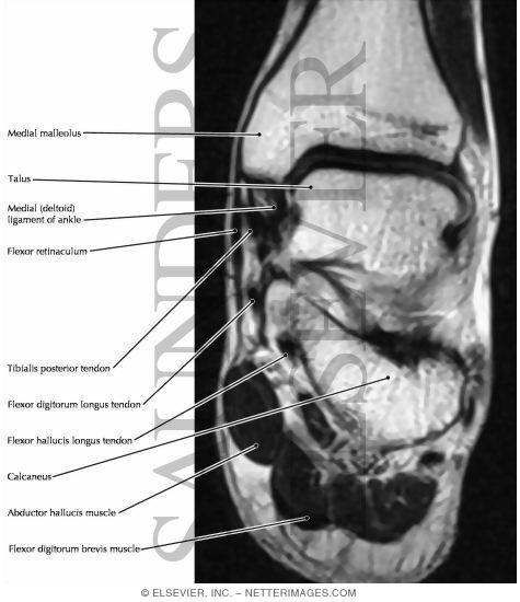 Deltoid Ligament