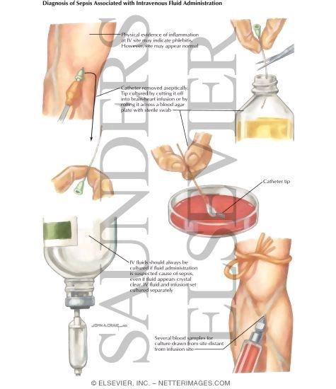 mid stream urine sample instructions