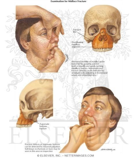 Facial fracture pictures