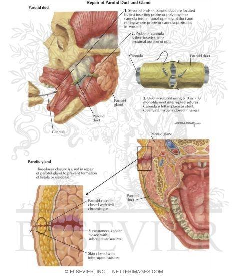 Trauma: Repair of Parotid Duct and Gland