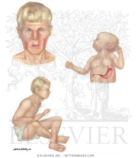 Illustration of Birth Defects: Phenylketonuria - Signs and Symptoms from the Netter Collection