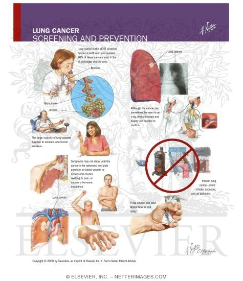 the prevention and treatment of the deadly lung cancer Diagnosis, prevention, and treatment of cancer,  of the national cancer institute  with early-stage lung cancer who have tumors that harbor.