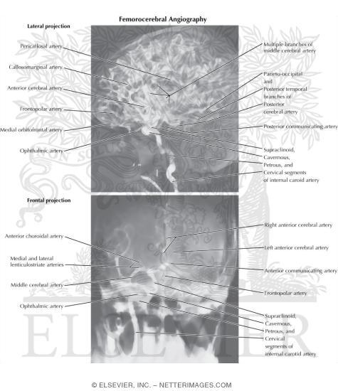 Angiographic Anatomy of the Internal Carotid Artery