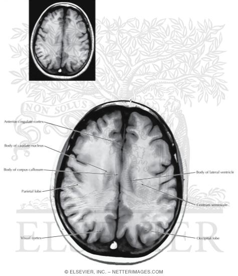 Axial (Horizontal) Sections Through the Forebrain: Level 9 - Body of Corpus Callosum
