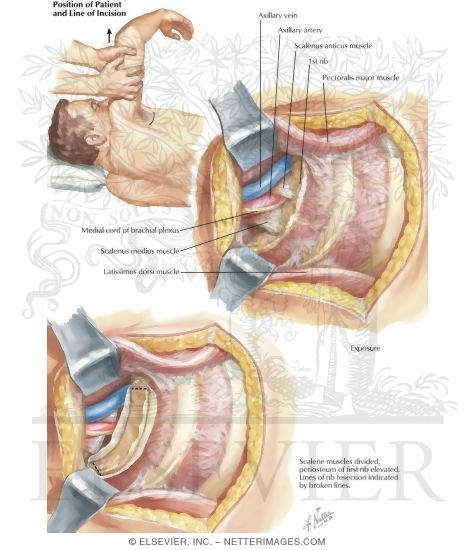 Resection of First Rib (Tranaxillary Approach)