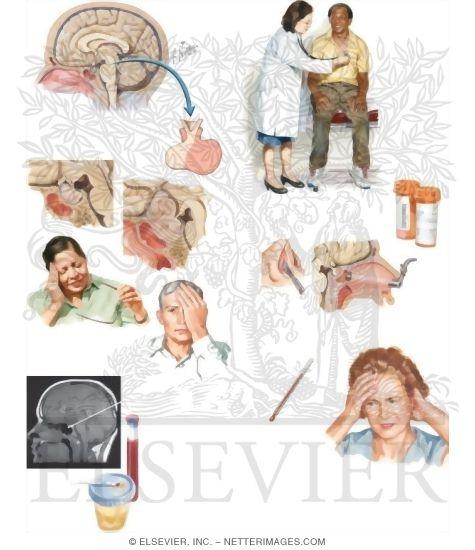 your pituitary adenoma, Cephalic Vein