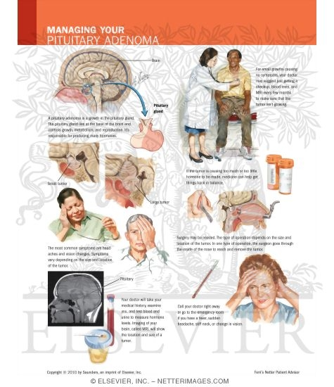 managing your pituitary adenoma, Human body